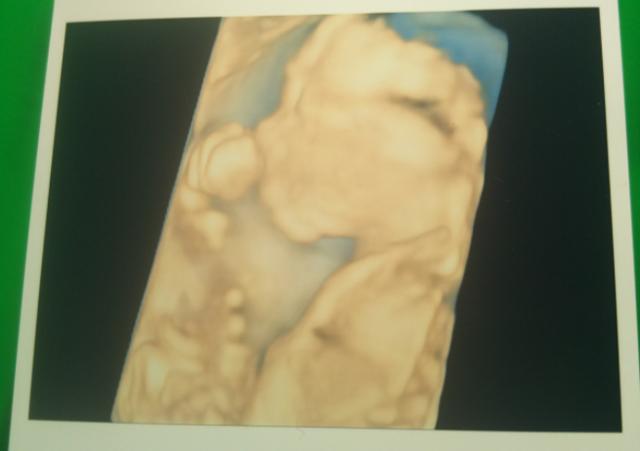 エコー写真 20週2日 20w2d 男の子,妊娠20週,エコー,