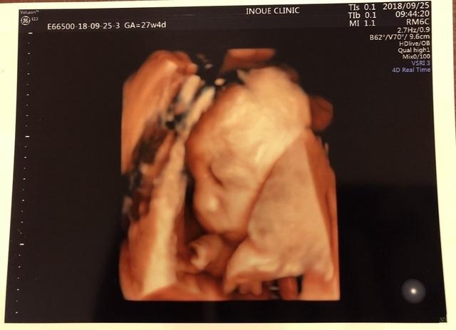 エコー写真 27週4日 27w6d 男の子,妊娠,27週,エコー写真