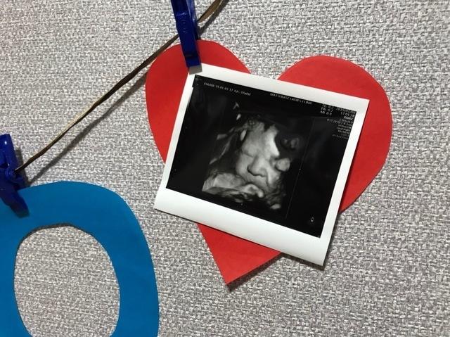 37週0日 37w0d 女の子,妊娠37週,エコー,