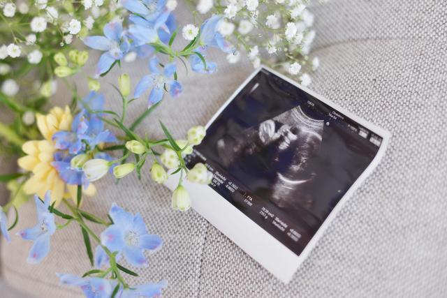 エコー写真,妊娠,10週,