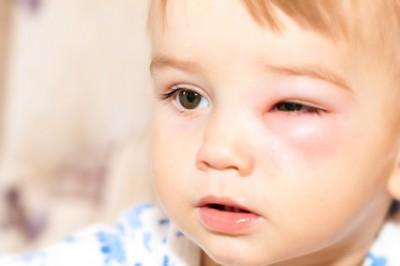 子連れでおでかけし、蚊に刺されて腫れてしまった際の対処法