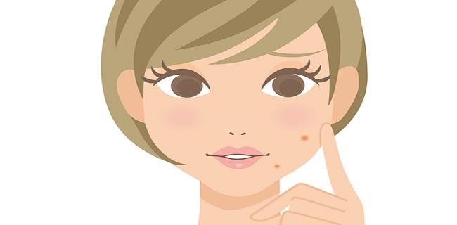 顔意外の場所にニキビができる原因と予防法