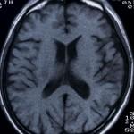 脳ドックってどんなことをするの【スムーズな流れを作るのが看護師の仕事】