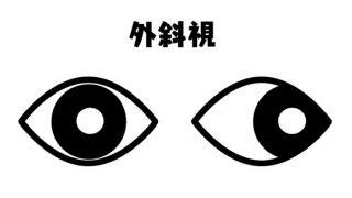 *検査について④カバーテスト*