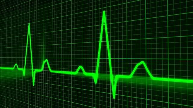 Pulse Trace Healthcare Medicine - Free image on Pixabay (427356)