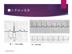 [臨床筆記]EKG Inter._Advanced 第1頁