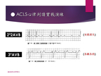 [臨床筆記]EKG Inter._Advanced 第16頁