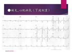 [臨床筆記]EKG Inter._Advanced 第18頁
