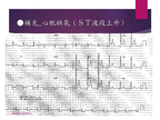[臨床筆記]EKG Inter._Advanced 第19頁
