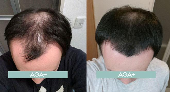 【薬剤師監修】AGAとはどんな脱毛症? 他の薄毛との違いを解説! 8番目の画像