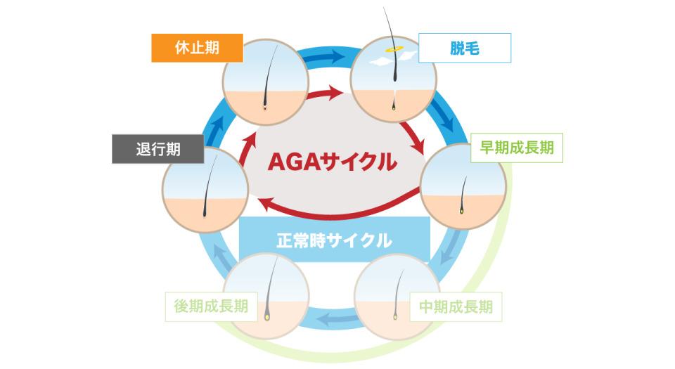 【薬剤師監修】AGAとはどんな脱毛症? 他の薄毛との違いを解説! 3番目の画像