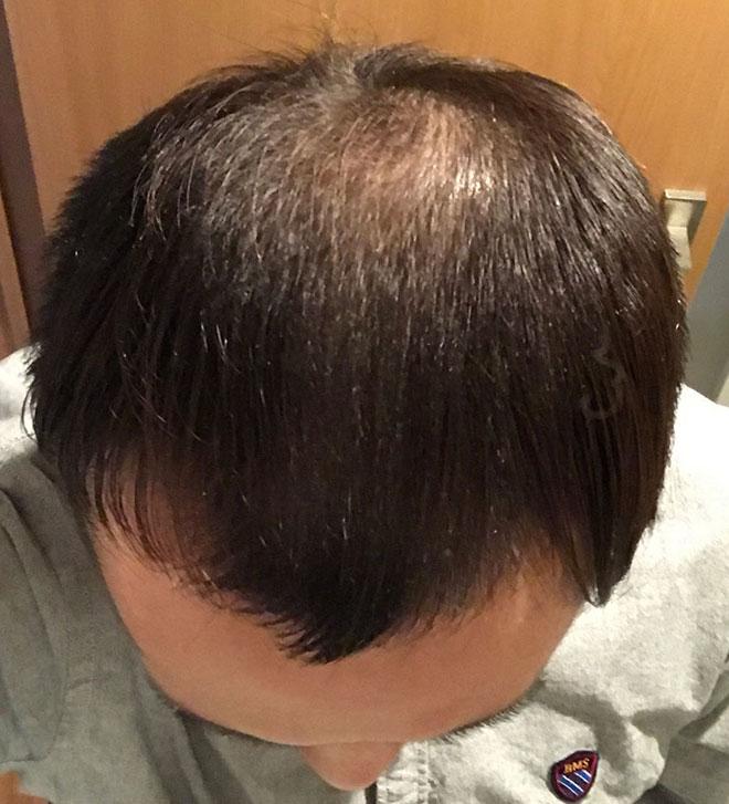 【実体験】ハゲ薄毛はAGA治療薬で治ると聞いたので16か月飲み続けてみた結果 9番目の画像