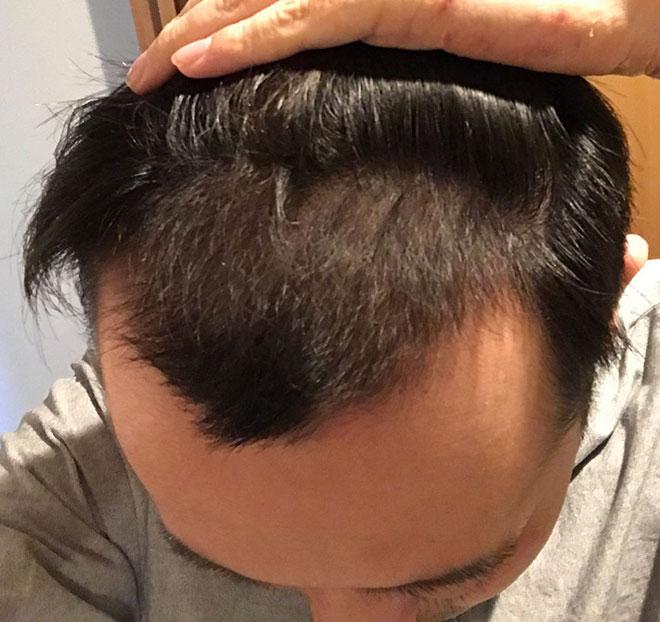 【実体験】ハゲ薄毛はAGA治療薬で治ると聞いたので16か月飲み続けてみた結果 10番目の画像