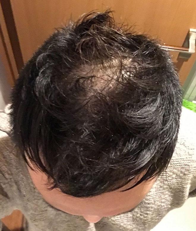 【実体験】ハゲ薄毛はAGA治療薬で治ると聞いたので16か月飲み続けてみた結果 12番目の画像