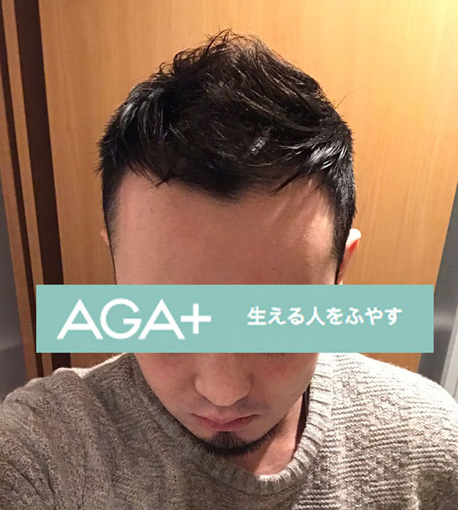 【実体験】ハゲ薄毛はAGA治療薬で治ると聞いたので16か月飲み続けてみた結果 13番目の画像