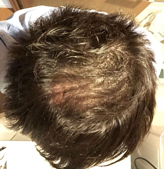 【実体験】ハゲ薄毛はAGA治療薬で治ると聞いたので16か月飲み続けてみた結果 14番目の画像