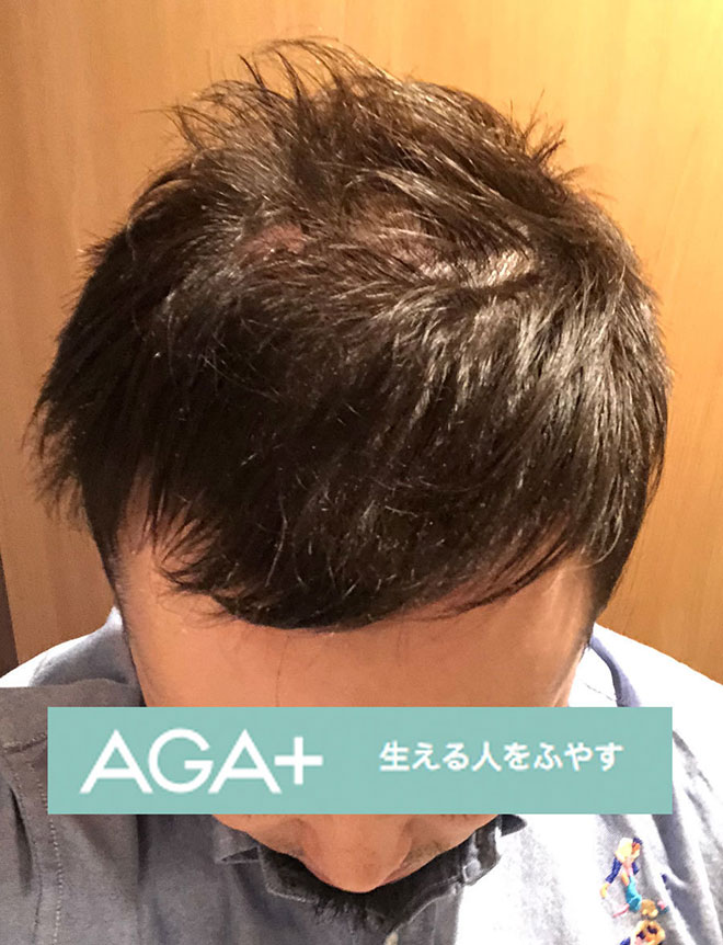 【実体験】ハゲ薄毛はAGA治療薬で治ると聞いたので16か月飲み続けてみた結果 15番目の画像