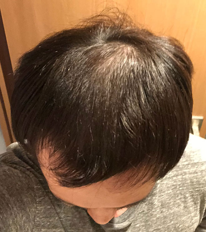 【実体験】ハゲ薄毛はAGA治療薬で治ると聞いたので16か月飲み続けてみた結果 16番目の画像