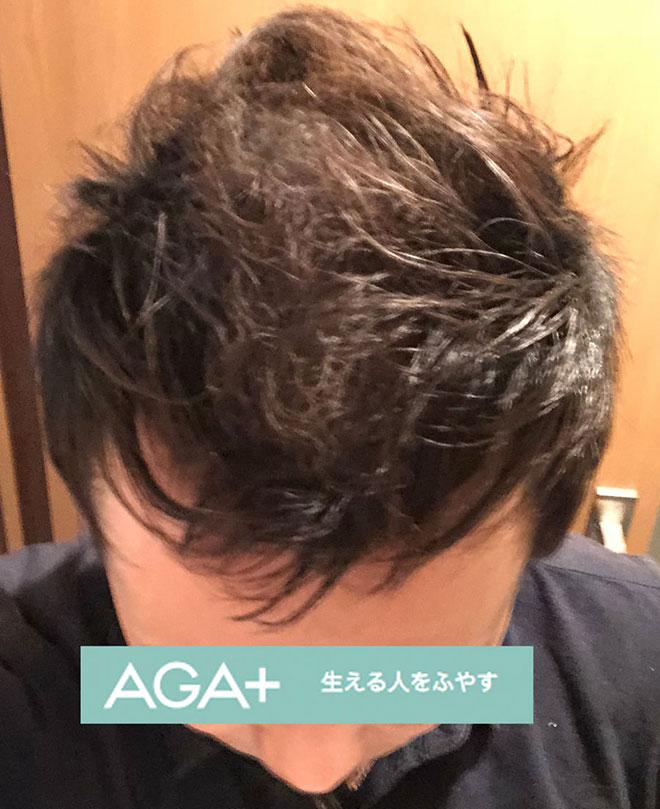【実体験】ハゲ薄毛はAGA治療薬で治ると聞いたので16か月飲み続けてみた結果 18番目の画像