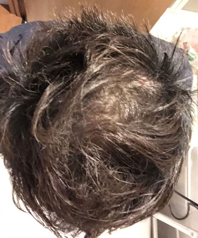 【実体験】ハゲ薄毛はAGA治療薬で治ると聞いたので16か月飲み続けてみた結果 19番目の画像