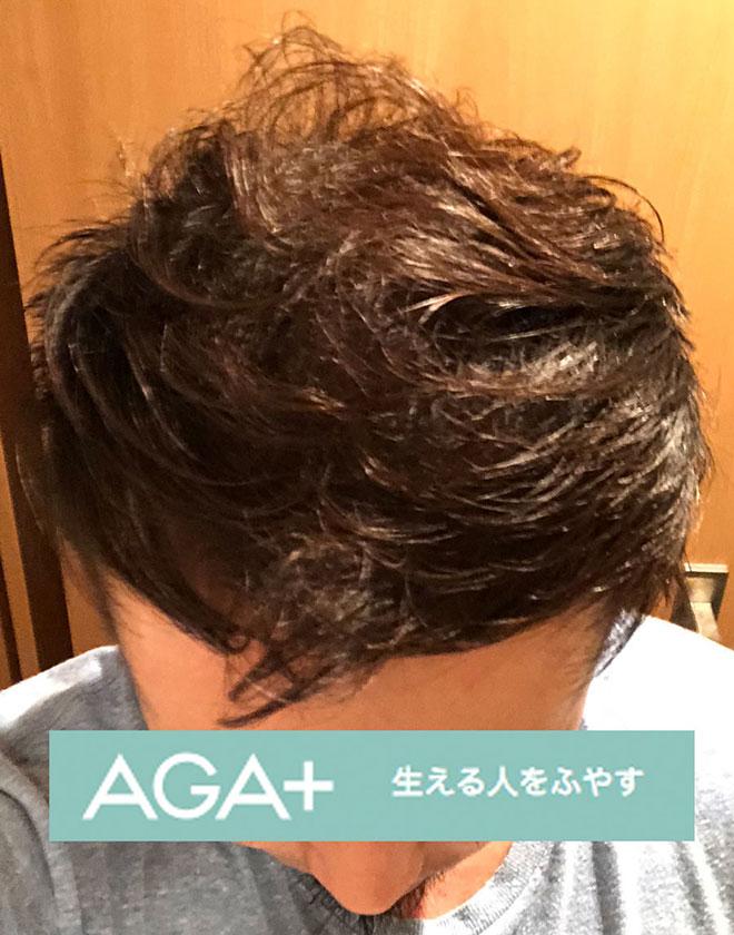 【実体験】ハゲ薄毛はAGA治療薬で治ると聞いたので16か月飲み続けてみた結果 20番目の画像