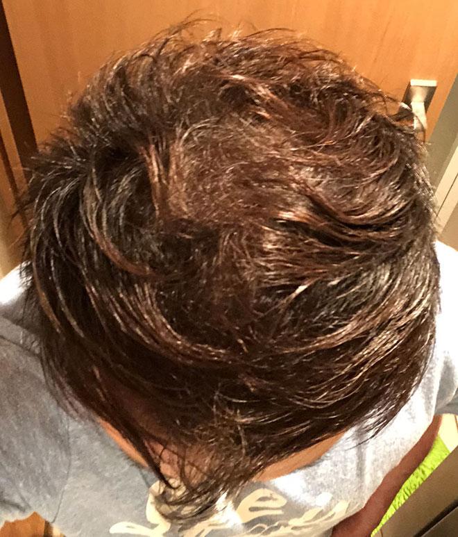 【実体験】ハゲ薄毛はAGA治療薬で治ると聞いたので16か月飲み続けてみた結果 21番目の画像