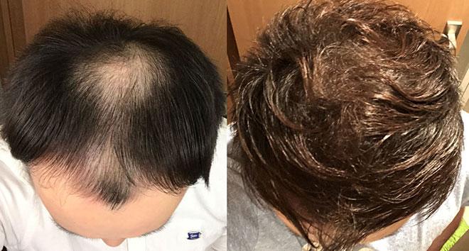 【実体験】ハゲ薄毛はAGA治療薬で治ると聞いたので16か月飲み続けてみた結果 22番目の画像