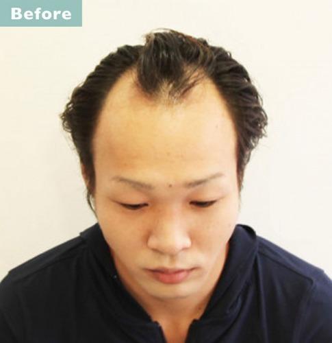 薄毛髪型ソフトモヒカン 薄毛・はげ隠しにおすすめの髪型8選!30代・40代など年代別おしゃれなヘアスタイルを徹底解説!