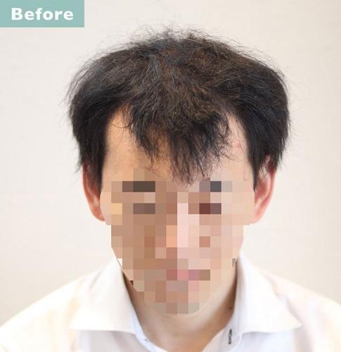 40 代 薄毛 髪型 メンズ
