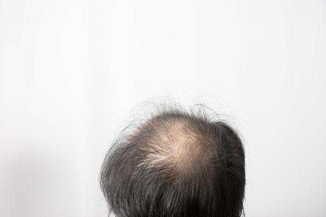 あなたの髪の毛が薄い原因は?意外と知らない薄毛のメカニズム アイキャッチ画像
