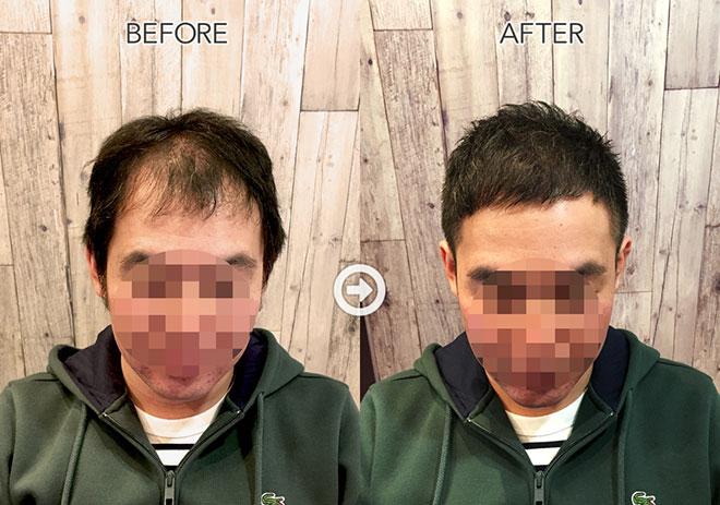 【人気美容師監修】ハゲる前に読む! 薄毛をカバーできるヘアスタイル&アレンジテク アイキャッチ画像
