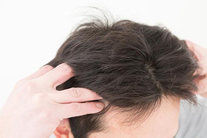ツボを押さえて薄毛予防! 今すぐ始める「頭皮マッサージ」 アイキャッチ画像