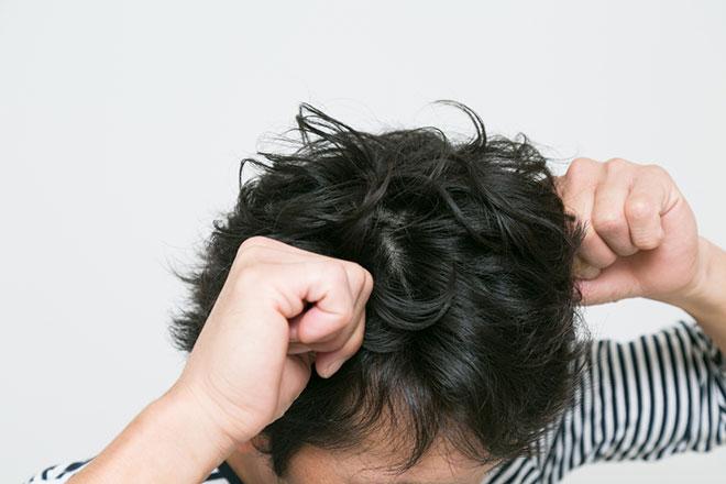 抜け毛の原因は頭皮の炎症? 正しい頭皮ケアとは アイキャッチ画像