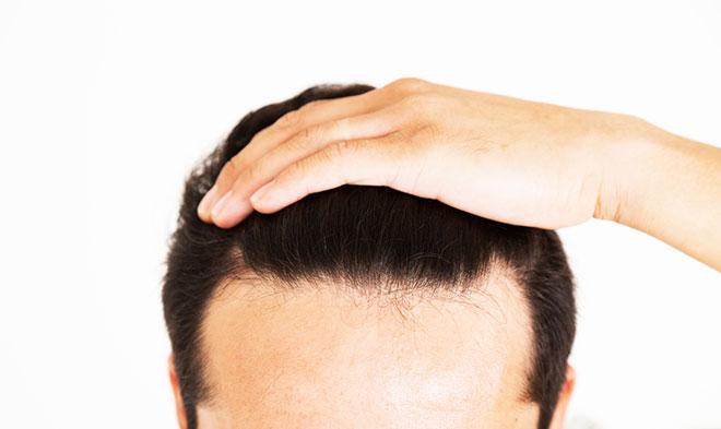 [毛髪診断士監修] 生え際の後退は進行する?生え際がハゲる原因と対策 アイキャッチ画像