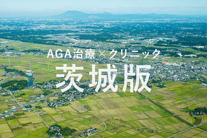 茨城の薄毛(AGA)治療クリニックまとめ《2019年版》 アイキャッチ画像