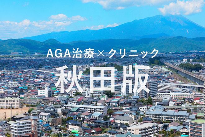 秋田の薄毛(AGA)治療クリニックまとめ《2019年版》 アイキャッチ画像