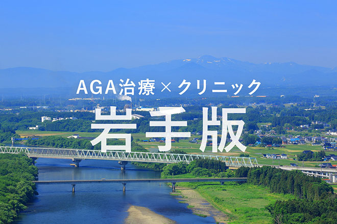 岩手の薄毛(AGA)治療クリニックまとめ《2019年版》 アイキャッチ画像