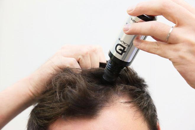 アンファーの発毛剤「スカルプD メディカルミノキ5」を薄毛メディアの編集部員がレビュー! アイキャッチ画像