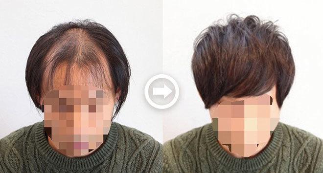 【写真付き】O字ハゲを自然に隠す髪型6選! 男の薄毛を熟知した美容師のヘアカタログ《AGA対応髪型》 アイキャッチ画像