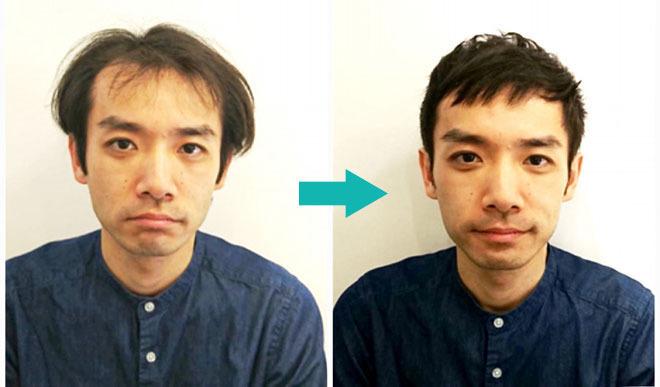 【写真付き】U字ハゲ・前頭部のハゲを自然に隠す髪型14選!男の薄毛を熟知した美容師のヘアカタログ《AGA対応髪型》 アイキャッチ画像