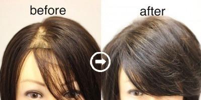 【写真付き】女性の薄毛をカバーするヘアスタイルの作り方 《FAGA対応髪型》 アイキャッチ画像