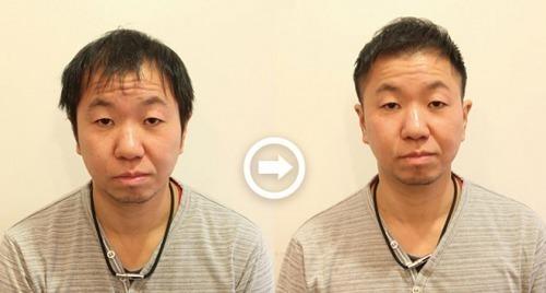 【写真付き】全体のハゲをカバーする髪型! 男の薄毛を熟知した美容師のヘアカタログ《AGA対応髪型》 アイキャッチ画像