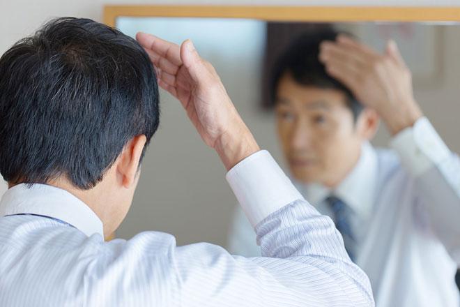 抜け毛の原因は男性ホルモンと毛周期に関係あり! 早めにAGA治療を アイキャッチ画像
