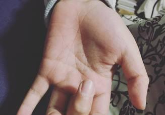 ゴルフの後に指が痛い
