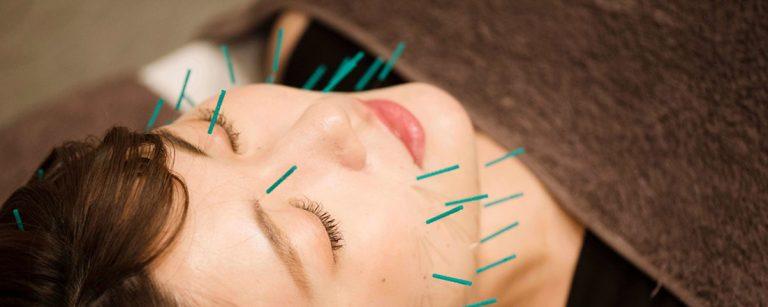 日比谷駅から徒歩5分〈iCure鍼灸接骨院 有楽町〉で、話題の美容鍼にチャレンジ!