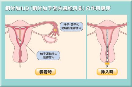 リング 効果 避妊