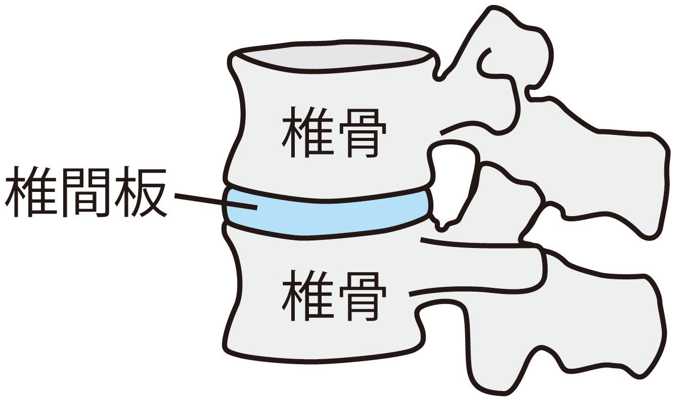 頸椎ヘルニアイラスト説明