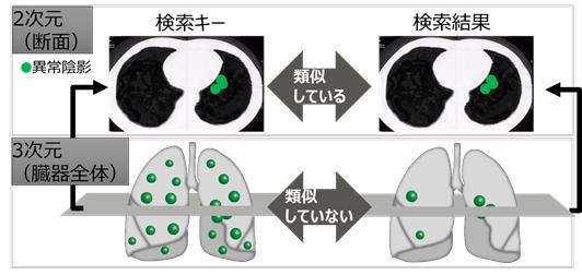 富士通研究所、CT検査におけるAIを活用した類似症例検索技術を開発
