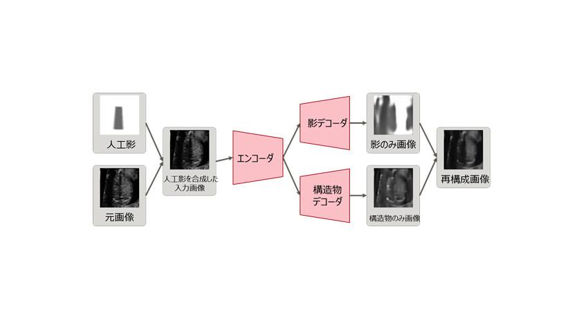 富士通他3者、AIを用いた超音波検査において影を自動検出できる新技術を開発
