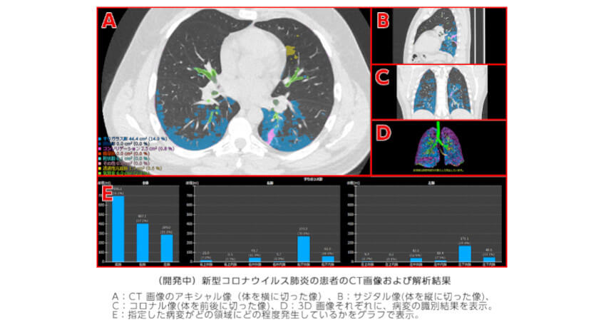 富士フイルム、AIを用いた新型コロナウイルス肺炎の診断支援技術の開発を開始